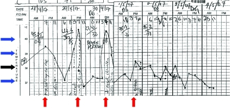 Patient's temperature chart showing fever spikes 24 h apart at approximately 7 PM daily (red arrow). The black arrow denotes 38°C, and each blue arrow denotes a difference of 1°C from the neighboring arrow.