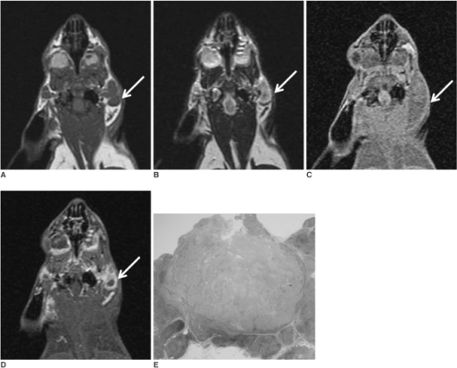 The coronal T1-(A) and T2-weighted (B) MR images obtained before injecting gadopentetate dimeglumine show enlarged parotid lymph nodes (arrow). The coronal T1-weighted MR images obtained before (C) and after (D) injecting gadopentetate dimeglumine 3 weeks after tumor cell inoculation show enlarged parotid lymph nodes (arrow) with rim enhancement. The photomicrograph (E) shows a metastatic parotid lymph node with central necrosis (H & E stain; original magnification, ×2).