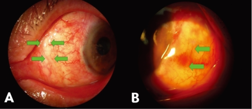 (A) Mild shrinkage (between arrows) of the conjunctivolimbal autograft and recipient conjunctiva was noted 2 weeks after surgery: Secondary epithelialization and spontaneous closure of the wound gap occurred in one week. (B) Transient edema (arrows) of conjunctivolimbal autograft 2 weeks after surgery: Spontaneous resolution occurred in one month.