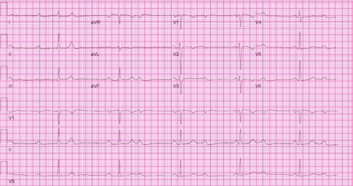 Patient's 12-lead electrocardiogram upon presentation showing complete atrioventricular block, and a junctional escape rhythm at 35 beats per minute.