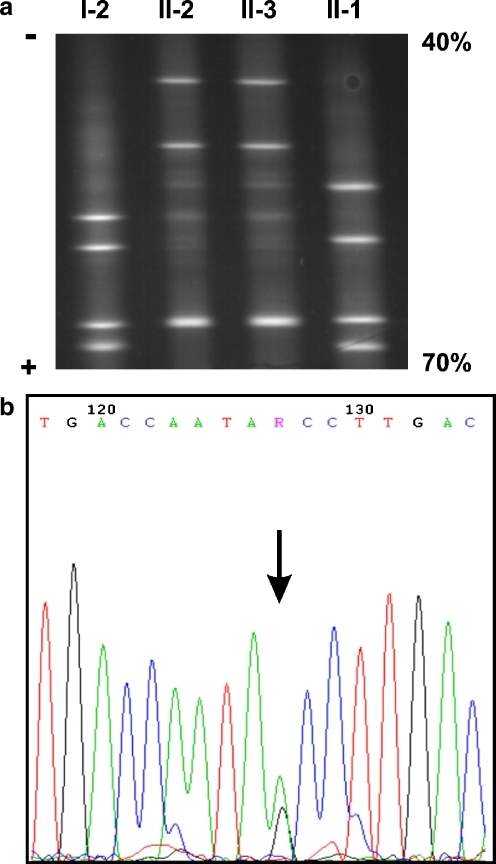 a DGGE analysis of the promoter region of the HBG2 gene. Numbering correlates with the family tree in Fig. 1a. Note the mutant HBG2:g.-158 T (lower band) and HBG2:g.-109 T homoduplexes (upper band) that comigrate in lanes II-2 and II-3, compared to lanes I-2 and II-1, respectively. The 40–70% denaturing gradient corresponds to the top and bottom of the gel, respectively. b DNA sequencing analysis, performed in the forward and reverse (not shown) orientation, revealing a G>T transition at position −109 of the HBG2 gene promoter (arrow)