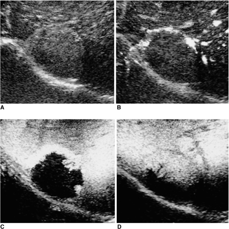 Hemangioma. Serial CHA acoustic emission images obtained during the precontrast phase (A), and at 20-sec (B), 1-min (C), and 5-min (D) delay, clearly demonstrate typical peripheral nodular enhancement with progressive centripetal fill-in.