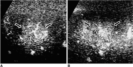 FNH (arrows). CHA images clearly depict the typical spoke-wheel pattern seen during the early vascular phase (A, 40-sec delay). The mass becomes isoechoic at late acoustic emission imaging (B, 3-min delay), a tendency which may help differentiate FNH from some HCCs showing a similar spoke-wheel vascular pattern but a washout pattern at late acoustic emission imaging.
