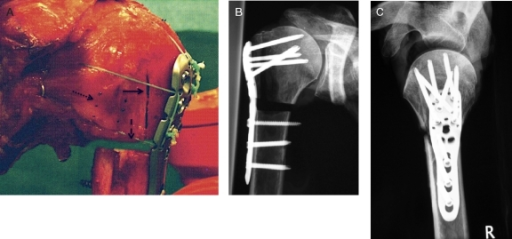 A. Unstable 3-part fracture model with fiber-cerclages of the proximal humerus intact rotator cuff. Fracture gap I (à) and II (- ->). Three point-pairs (….>) for measurement of rotator cuff strain. B. AP and C. axillary views of an unstable 3-part-fracture model.