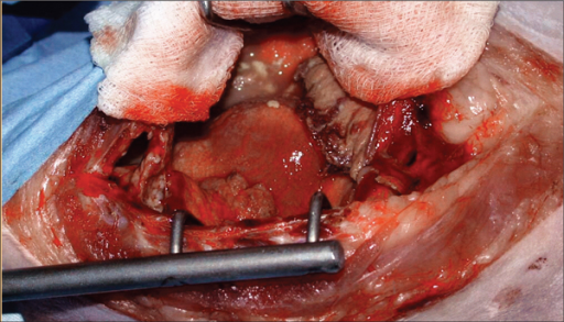 Intraoperative photograph of exploratory sternotomy of thoracic cavity.