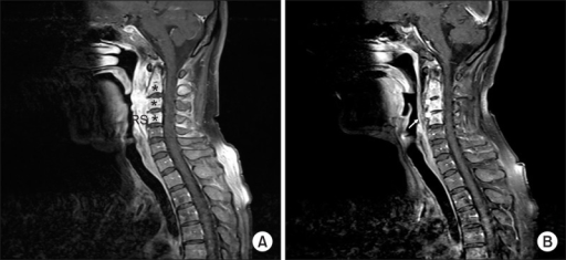 how to read mri cervical spine results