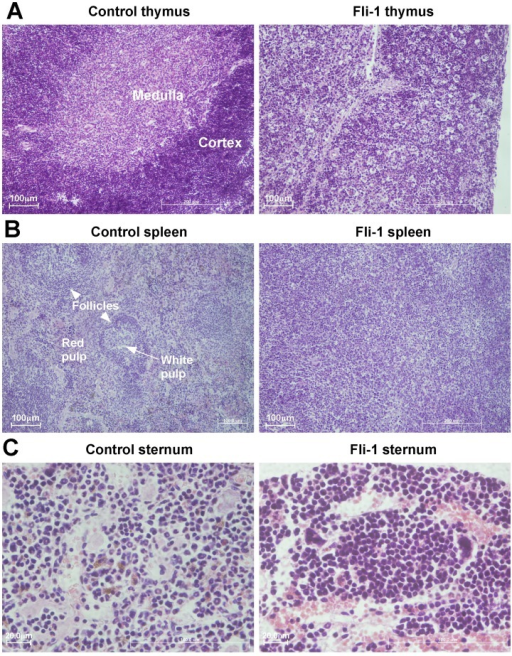 Fli-1-induced pre-T LBL perturbs thymic, splenic and bone marrow architecture.Representative tissue sections (Haematoxylin & Eosin stain) of MigR1 and Fli-1 mice. MigR1 sections show normal organ architecture, whereas Fli-1 sections show thymus and spleen architecture effaced by small infiltrating malignant lymphocytes also present in the Fli-1 sternum. A. Thymus (x10 magnification). B. Spleen (x10 magnification). C. Sternum (x40 magnification).