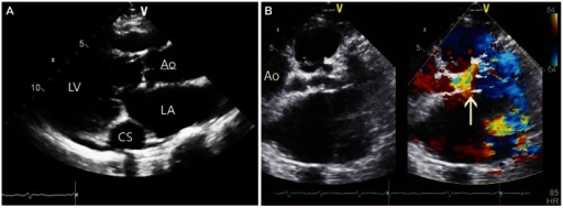 Echocardiographic findings. A: echocardiography shows a dilated coronary sinus. B: echocardiography shows a dilated left main coronary artery and abnormal color flow at the pulmonary valve level. Arrow indicating left main trunk and turbulent flow. LV: left ventricle, CS: coronary sinus, LA: left atrium, Ao: aorta.