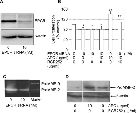 Blocking EPCR prevents APC-induced MMP-2 synthesis and proliferation. (A) ECPR protein expression in response to EPCR siRNA treatment at 48 hrs detected by Western blot using whole cell lysates. β-actin was used as the loading control. (B) Cell proliferation was measured after cells were treated with combinations of APC, siRNA and RCR252 for 72 hrs. Cell proliferation is expressed as a percentage of control (mean ± S.D., n= 3 experiments). *P < 0.05 and **P < 0.01 compared to negative control (first bar), ++P < 0.01 compared to APC (fourth bar). Images of gels represent one of three independent experiments. (C) MMP-2 was measured in supernatants of cells trans-fected with either control siRNA (0) or EPCR siRNA for 72 hrs, using zymography. (D) MMP-2 was measured in supernatants of cells treated with APC alone or APC plus RCR252 for 24 hrs using Western blot analysis. β-actin used as the loading control.