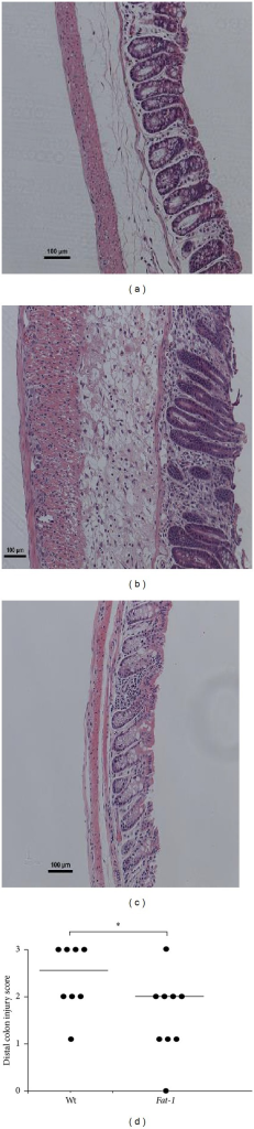 The degree of distal colon histological injury/damage in Fat-1 and Wt TNBS-treated mice (n = 8-9/genotype). ((a) and (b)) Representative images (100x magnification, scale bar = 100 μm) of TNBS-treated Fat-1 and Wt mice, (c) Wt saline control treated (injury score = 0) distal colons, and (d) injury scores (0–3) in the distal colon from Wt and Fat-1 TNBS-treated mice, respectively. Data were analyzed using the Kruskal-Wallis test (P ≤ 0.05). Median values are shown and significant differences between genotypes are marked with an asterisk (P ≤ 0.05).