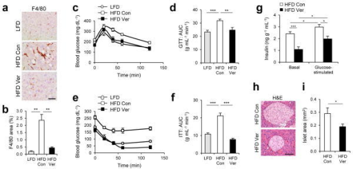 Verapamil reduces liver inflammation and improves metabolic homeostasis4 month-old C57BL/6 male mice kept on HFD for two months were subjected to daily administration of PBS (Con, n = 4) or verapamil (Ver, 25 mg kg−1 body weight, i.p., n = 3) for 10 days. LFD-kept mice of same age (n = 5) were used as a negative control. (a, b) Liver sections were subjected to F4/80 immunostaining, which visualizes macrophage infiltration and hematoxylin counterstaining (a). F4/80-positive areas were quantified (b). (c–f) Glucose tolerance tests (GTT, c, d) and insulin tolerance tests (ITT, e, f) were conducted using indicated mice (c, e). Area-under-the-curve (AUC) was quantified from GTT and ITT data (d, f). (g) Serum insulin levels were measured from indicated mice before (Basal) and 10 min after (Glucose-stimulated) glucose injection (n = 4). (h, i) Pancreas sections were analyzed by hematoxylin and eosin (H&E) staining (h). Islet areas were quantified (i) (n = 4). Scale bar, 200 μm (a), 100 μm (h). All data are shown as mean ± s.e.m. *P < 0.05, **P < 0.01, ***P < 0.001 (Student's t test).