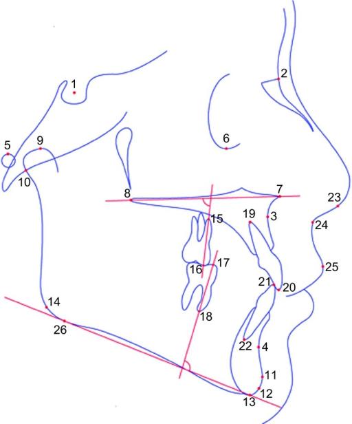 Cephalolometric Landmarks Schematic 1 Sella S 2