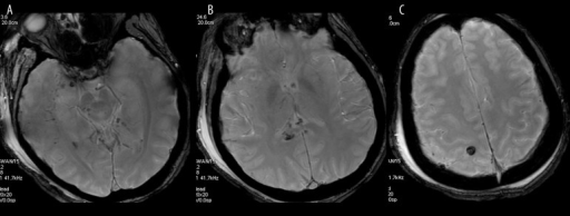 Diffuse axonal injury. Axial susceptibility weighted images show multiple small hypointense foci of hemorrhage within the right temporal lobe and midbrain (A), splenium of the corpus callosum (B) and right parietal lobe (C), which are usually hardly visible on other MR sequences.