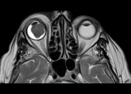 Metastatic melanoma to the right eyeball. Axial T2-weighted image shows low signal characteristic of melanin.
