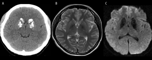 "Fahr's disease. Unenhanced CT image (A) shows typical bilateral calcifications in the region of basal ganglia. T2-weighted image (B) shows hypointense both globi pallidi, while T2* image (C) reveals larger areas of hypointensity due to a susceptibility artifact and a ""blooming effect""."