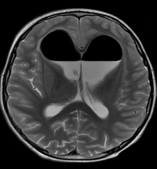 T2-weighted image shows a large amount of hypointense air within the lateral ventricles after a neurosurgical procedure.