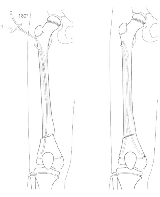 Antegrade ESIN technique in distal femoral fractures