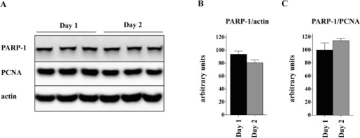 Lack of the contact inhibitory effect on PARP-1 expression in myoblasts.(A) Western blot analysis of PARP-1 in myoblasts at day 1 and 2 after reaching 100% confluence. Actin was used as a loading control. PARP-1 densitometric analysis was normalized to actin (B) or PCNA (C); values obtained in Day 1 cells were set as 100%. The results show no significant difference in PARP-1 protein between cells kept for 1 or 2 days after reaching 100% confluence.