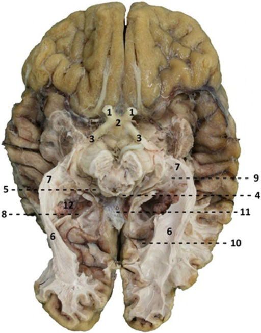 Caudal View Of A Brain After Dissection 1 Optic Nerve Open I