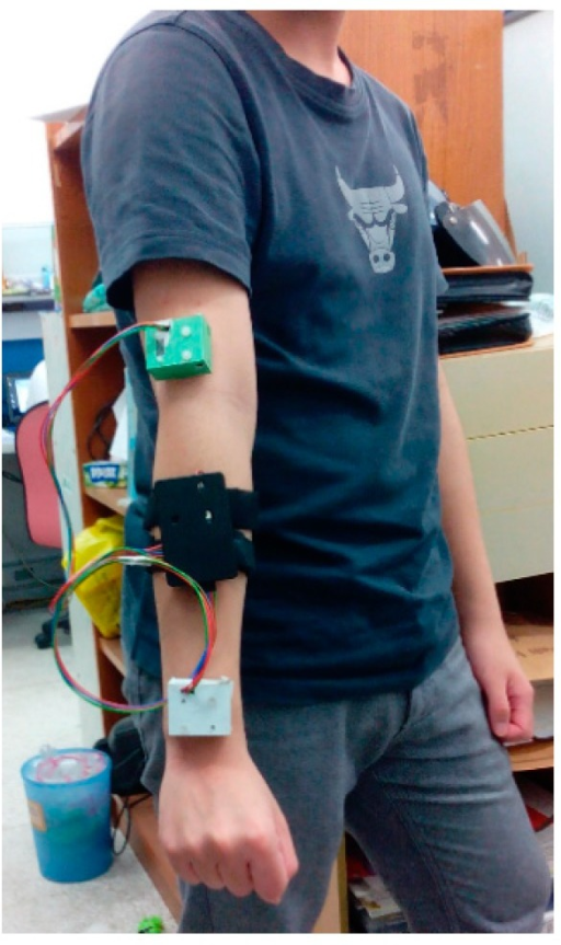 Implemented two-channel wireless IMU system mounted on the upper extremity of a healthy adult.