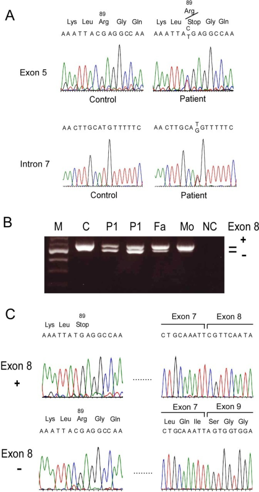 Novel mutations in Patients 1 (P1) and 2 (P2).(A) Genomic DNA sequencing of exon 5 in the BBS5 gene showed a C>T transition at the codon 89, resulting in arginine to stop (p.R89X). (B) RT-PCR revealed that an extra band with a shorter fragment in P1, P2, and their father (Fa), but not in normal control (C) or their mother (Mo). NC indicates no cDNA contained. (C) Sequencing of RT-PCR fragments showed that the shorter fragment lacked exon 8 with normal sequences in exon 5, while the normal-size fragment included exon 8, but had p.R89X mutation in exon 5. (D) Genomic DNA sequencing in exon 8 and surrounding introns in the BBS5 gene showed IVS7-27 T>G mutation in the patients.