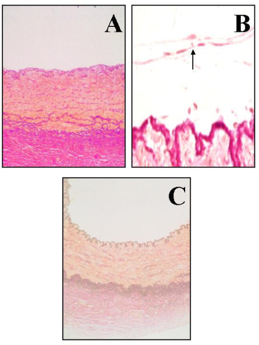Micrographs of sections of porcine coronoary organ cultures at day 28, staining with elastica van gieson: untreated control (A), ex vivo ballooning (B) and ex vivo ballooning with simultaneous intra/extravascular antiproliferative drug therapy (C). arrow = area of neointimal thickening.
