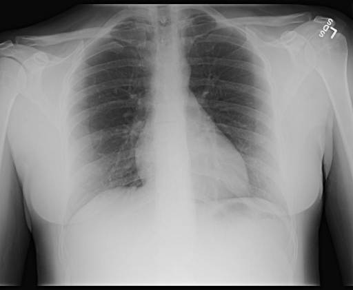 CHEST ( FRONTAL AND LATERAL): XXXX, XXXX XXXX PM
