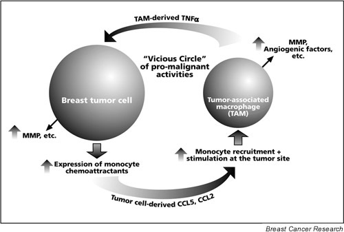 A proposed model for the potential role of the interactions between tumor cells and inflammatory elements in breast cancer progression. The expression of monocyte chemoattractants (CCL5 and CCL2) by breast tumor cells may induce monocyte infiltration to breast tumor sites. The resulting tumor-associated macrophages (TAM) may express promalignant mediators, such as tumor necrosis factor alpha (TNF-α). This inflammatory cytokine may further promote the expression of tumor-supporting factors by the tumor cells, including matrix metalloproteinases (MMP) and the monocyte chemoattractants CCL5 and CCL2. The elevated expression of these chemokines by the tumor cells may result in additional monocyte recruitment, and in the stimulation of TAM at the tumor site. TAM stimulation may give rise to promoted levels of expression of promalignant factors, such as MMP, angiogenic mediators and TNF-α. Some of these activities may be stimulated directly by the chemokines. TAM-derived TNF-α may in turn further increase the expression of monocyte chemoattractants (e.g. CCL5, CCL2) by the tumor cells, and so on. This process may be aided by other functions of inflammatory cells/cytokines/chemokines (vascularization, release of growth factors, etc.; see Table 1) that eventually support the growth of the primary tumor and distant metastasis formation (possibly assisted by other chemokines, such as CXCL12).