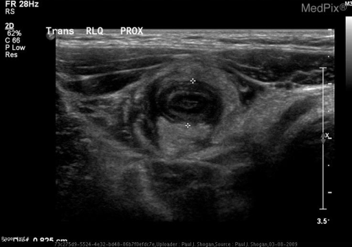 Gray-scale transverse sonographic image through the right lower quadrant shows an inflamed appendix.  This dilated, fluid-filled, noncompressible, blind-ending tubular structure measured 8 mm in diameter, with increased periappendieal echogenicity representing infiltration of mesenteric fat.  Additionally, note the target appearance caused by a fluid-filled lumen and an intact echogenic submucosal layer.
