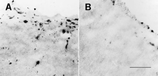 Staining of porcine  zona pellucida with PSGL-1  peptide antibody. Zona pellucida of porcine oocytes  were stained with either (A)  PSGL-1 peptide antibody or  (B) preimmune IgG followed  by indirect immunoperoxidase EM as described above.  The outer surfaces of the  zona are shown. Bar, 2 μm.