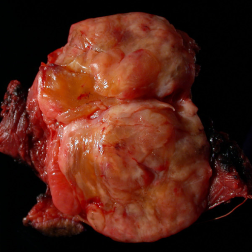 Gross pathologic photograph of the primary tumor resected from the leg. The tumor has a significant fat component and is relatively well circumscribed.
