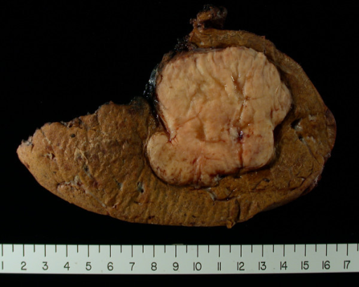 Liver resection specimen showing well circumscribed tumor with fat component.