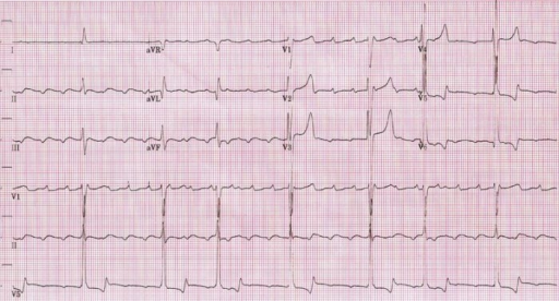 Admission ECG showing slow atrial flutter at an atrial cycle length of 400ms (atrial rate of 150bpm)