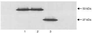 Western blot. The 7 base pair mutation was cloned into the mammalian expression plasmid pC53-SN3, which was transfected into Saos-2 cells. A Western blot was carried out using lysates from these cells, cells transfected with WT p53 and PHA stimulated lymphocytes from the patient. The blot showed WT p53 with the expected size of 53 kDa (lane 1) and the p53 from the patient's lymphocytes also at size 53 kDa (lane 2). The cells transfected with the manufactured mutation showed a protein on the blot at about size 27 kDa (lane 3).