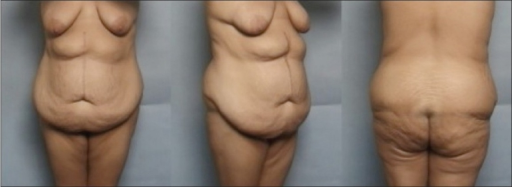 A patient following massive weight loss with typical lower truncal deformities