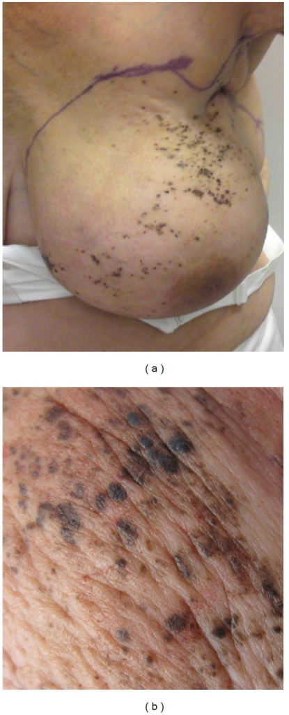 (a) Large numbers of pigmented areas on the skin of the affected breast. (b) Pigmented maculae.