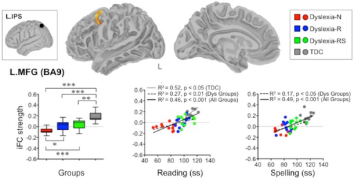 Atypical iFC between the left intraparietal sulcus (L.IPS) and left middle frontal gyrus (L.MFG) associated with historical diagnosis of dyslexia.The box-and-whisker plot depicts L.IPS-L.MFG iFC for each group and group differences, whereas the two scatterplots represent the relationships between the strength of this connection and reading as well as spelling scores. iFC = intrinsic Functional Connectivity, Dys-N = Dyslexia with No Remediation, Dys-R = Dyslexia with Reading Remediation, Dys-RS = Dyslexia with Reading and Spelling Remediation, TDC = Typically Developing Children, Dys = Dyslexia, ss = standard scores: ***p<0.001, **p<0.01, *p<0.05 (corrected): L.IPS-L.MFG iFC was weaker in all dyslexia groups relative to TDC.