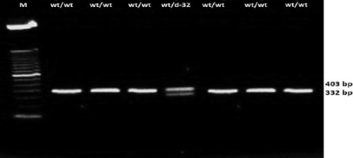 CC-chemokine receptor-5 genotyping among the tribes Lane 1, 2, 3, 5, 6 and 7 represent the PCR product from samples with homozygous wild type genotypes (fragments of 332 bp wt/wt). Lane 4 represents the Δ-32 genotype (with the presence of both fragment of 332 and 403 wt/Δ32)