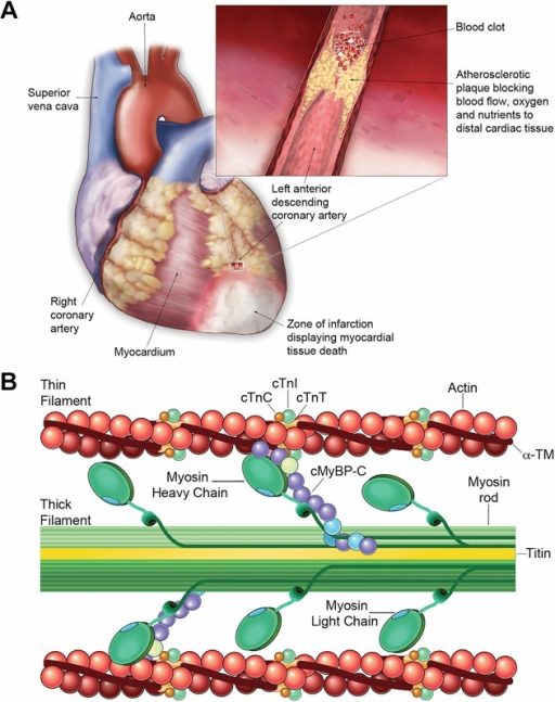 cardiac morphology and sarcomere structure. (a) anatomi | open-i, Muscles