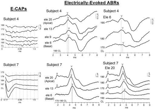 Electrically-evoked compound action potentials and ABRs from OPA1-M implanted patients. Electrically-evoked potentials from two representative subjects are displayed. In Subject 7 (bottom) both electrically-evoked compound action potentials (left) and electrically-evoked ABRs (middle and right) were recorded at all electrode locations; wave II was also identified in electrically-evoked ABR recordings in addition to wave V. No electrically-evoked compound action potentials were obtained from Subject 4, whereas electrically-evoked ABR wave V was recorded at all electrode locations. In both patients wave V was recorded with increasing latency from apical to basal electrodes (vertical dashed lines, middle). For a given electrode location, decreasing current levels resulted in increased latencies and attenuated wave V amplitudes (vertical dashed lines, right).