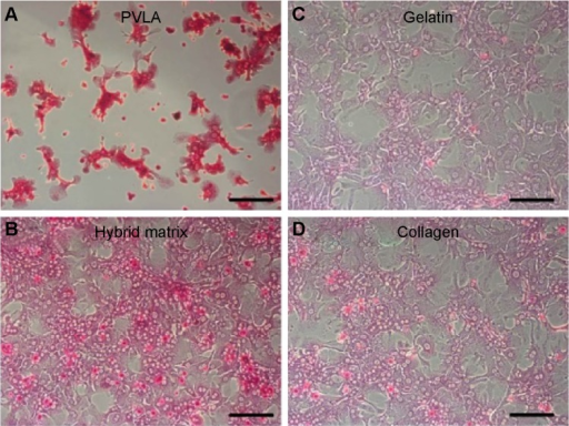 The storage of glycogen (red) in primary hepatocytes on various surfaces after 1 day in culture.Notes: The surfaces include a PVLA-coated dish (A), the hybrid matrix (B), a gelatin-coated dish (C), and a collagen-coated dish (D). Scale bar: 50 μm.Abbreviation: PVLA, poly-(N-p-vinylbenzyl-4-O-β-D-galactopyranosyl-D-gluconamide).