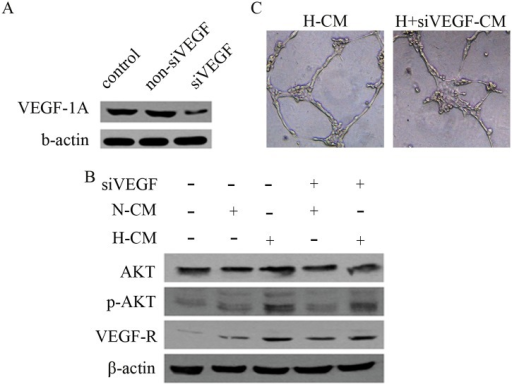 Hypoxia pretreatment of BM-MSCs modulates VEGF/AKT signaling in HUVECs.(A) The expression of VEGF-1α was suppressed with lentiviral-mediated siRNA-VEGF-1α (siVEGF). (B) CM generated from hypoxia pretreated BM-MSCs treated with siVEGF downregulated the expression of pAKT and VEGFR in HUVECs, as determined by western blot. (C) The capacity of HUVECs to form tubes was inhibited by CM from VEGF-1α-silenced BM-MSCs.