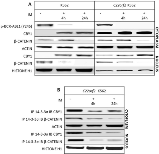 IM promotes changes in CBY1 and β-catenin expression associated with the dissolution of CBY1 and β-catenin binding with 14-3-3σ. A- Cytoplasmic and nuclear protein analysis was performed after 4 and 24 hours of exposure to IM. In first instance, BCR-ABL1 de-phosphorylation at the critical residue for constitutive activation of the fusion protein enzymatic activity (tytosine-Y-245) was assessed, hence proving IM inhibitory effect on its target at the time other protein expression and interactions were investigated; B- WB and IP/IB have been performed according to published procedures and confirmed in three independent experiments. Densitometric analysis of signal intensities shows a statistically significance difference (p<0.05; Student's t test) in treated vs untreated cells. Actin and histone H1 were used as control for loading of cytoplasmic and nuclear proteins, respectively. Lack of IM off target effects is shown in the Supplementary section, S2 Fig