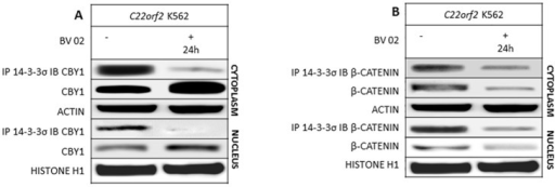 The dissolution of CBY/14-3-3σ complex in response to BV02, an inhibitor of 14-3-3 binding modes I and II, is associated with a CBY1 increment in the cytoplasmic and nuclear compartment.A- CBY1 expression and interaction with 14-3-3σ and βcatenin expression and interaction with 14-3-3σ were assayed in the cytoplasmic and nuclear compartments of C22orf2 K562 cells at 24th hour of exposure to BV02. See legend to Fig 1 for technical details.