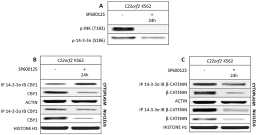 JNK and 14-3-3σ de-phosphorylation at threonine 183 and serine 186, respectively, in response to JNK inhibitor SP600125 prevents the dissolution of CBY1/14-3-3σ complex and leaves steady the cytoplasmic expression of CBY1.A- SP600125 inhibitory effects on its targets (JNK and 14-3-3); B- CBY1 expression and interaction with 14-3-3σ and βcatenin expression and interaction with 14-3-3σ were assayed in the cytoplasmic and nuclear compartments of C22orf2 K562 cells 24th hour of exposure to SP600125. The absence of off-target effects was assayed (Supplementary section, S2 Fig). See legend to Fig 1 for technical details.