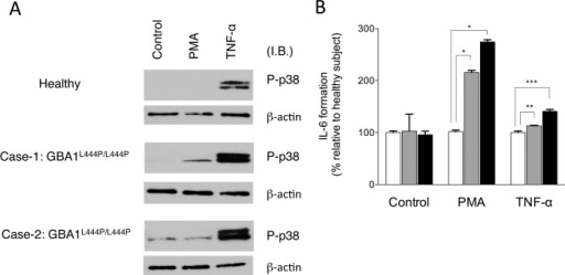 p38 activation and IL-6 formation in fibroblasts from Gaucher's disease patients harboring GBA1L444P/L444P.A. Human fibroblasts were stimulated with 100 nM PMA or 25 ng/ml TNF-α for 30 min. Proteins were subjected to immunoblot analysis with antibodies specific for phospho/active-p38 (p-p38) and β-actin. Equal amounts of protein were loaded in each lane, and the representative results are shown. B. After 6 h stimulation, levels of IL-6 in culture supernatants were measured using ELISA system. IL-6 values in control, PMA and TNF-α are expressed as percentage relative to those of healthy subject, respectively. Data represent mean ± S.E. (n = 3). *, p < 0.001; **, p < 0.02; ***, p < 0.002.