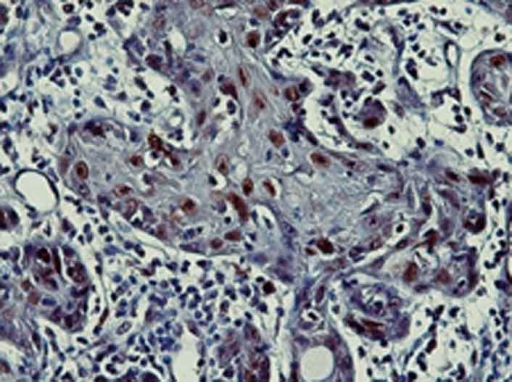 Nuclear p21 immunostaining in oral squamous cell carcinoma