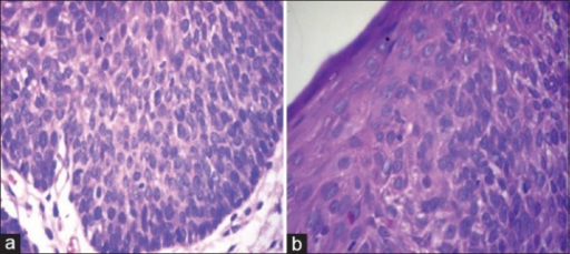 (a) Epithelial dysplasia with basement membrane intact from a biopsy taken from leukoplakia on (H and E, ×100), (b) epithelial dysplasia on (H and E, ×400)