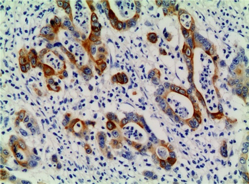 p-mTOR-positive expression in the primary lesion (×200).Abbreviation: p-mTOR, phosphorylated mammalian target of rapamycin.