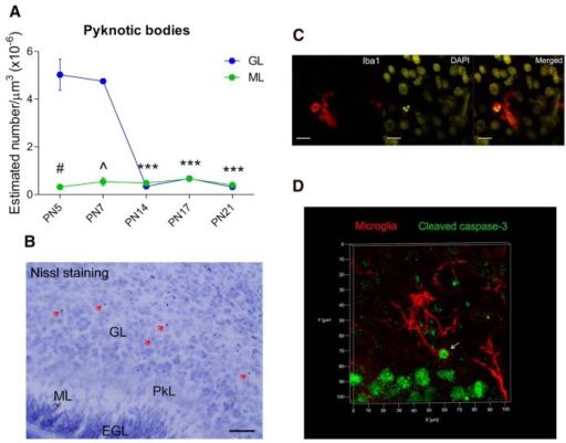 Identification of pyknotic bodies by Nissl staining in the postnatal developing cerebellum. A, The density of pyknotic bodies (red arrows) decreased only in the GL after the first postnatal week at P14, P17 and P21 (***p < 0.000), but not at P7 (p = 0.302), compared with P5. No changes in the density of pyknotic bodies were detected in the ML across the developmental time points analyzed when compared with P7 (P5, p = 0.199; P14, p = 0.688; P17, p = 0.487; P21, p = 0.375). The GL exhibited more pyknotic bodies than the ML only during the first postnatal week at P5 (#p < 0.000) and P7 (^p < 0.000). Scale bar, 25 µm. Data are expressed as mean ± SEM (*n = 6, 3 males + 3 females; ^n = 4, 2 males + 2 females: *P5, ^P7, *P14, *P17, and *P21). B, P7 cerebellar sagittal section stained with cresyl violet showing pyknotic bodies pointed out by red arrows. Pk, Purkinje layer; EGL, external granular layer. C, Confocal colocalization of a pyknotic body (fragmented nucleus in yellow) and a phagocytic cup (red) in the cerebellar cortex at P17. Scale bars, 15 µm. D, 3D confocal image depicting a colocalization of a microglial phagocytic cup (red) and a cleaved caspase-3-positive cell (green) at the tip of a microglia process (white arrow).